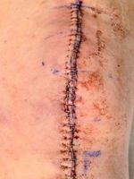 surgical scars