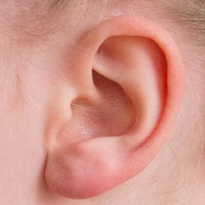How long does ear pinning surgery take?